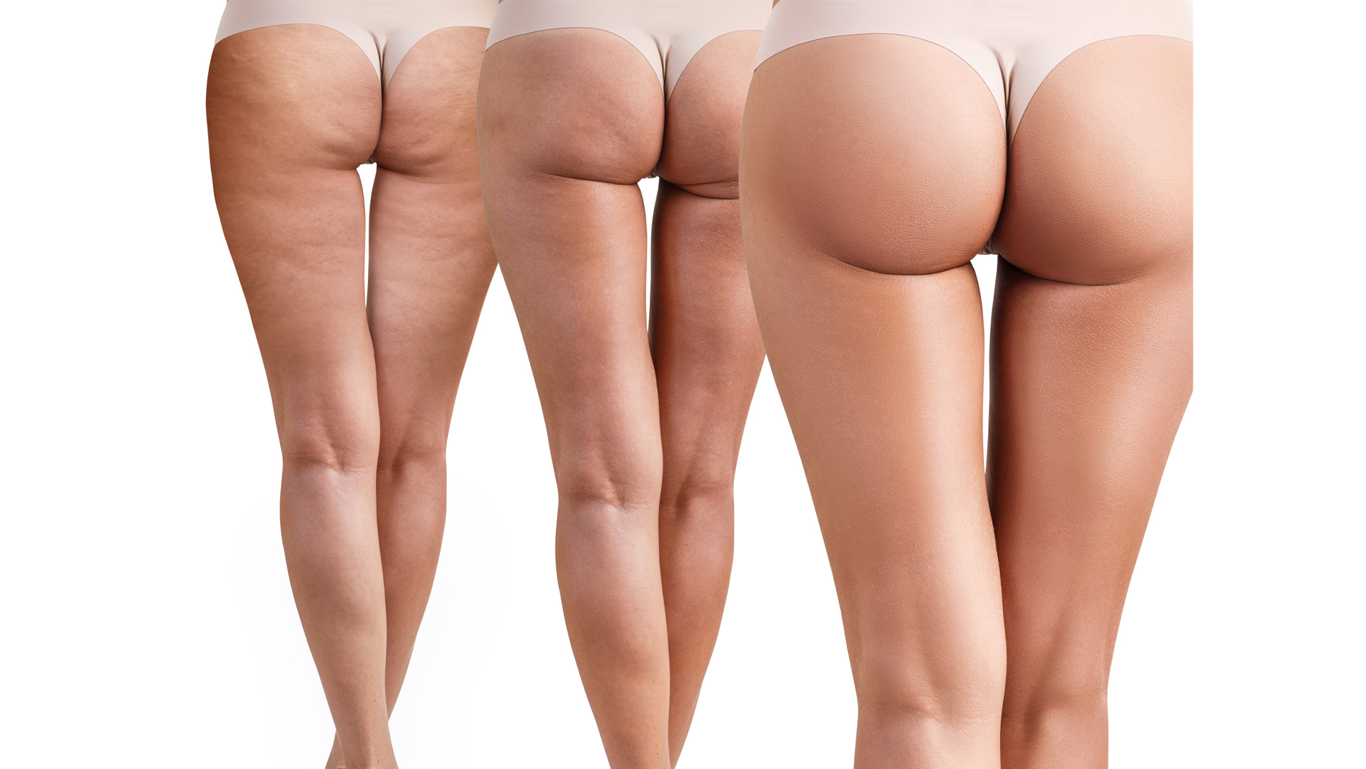 The Ultimate Guide To Cellulite What Is Cellulite Macom